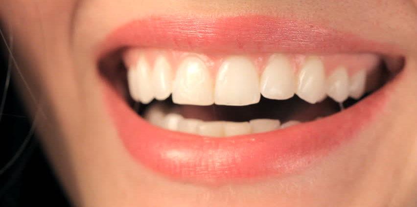 اسرار لبخندی زیباتر